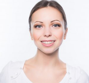 Clear Braces in Palatine, IL